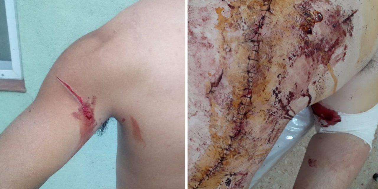 Salvaje riña en San Genaro: tres jóvenes heridos y detenidos