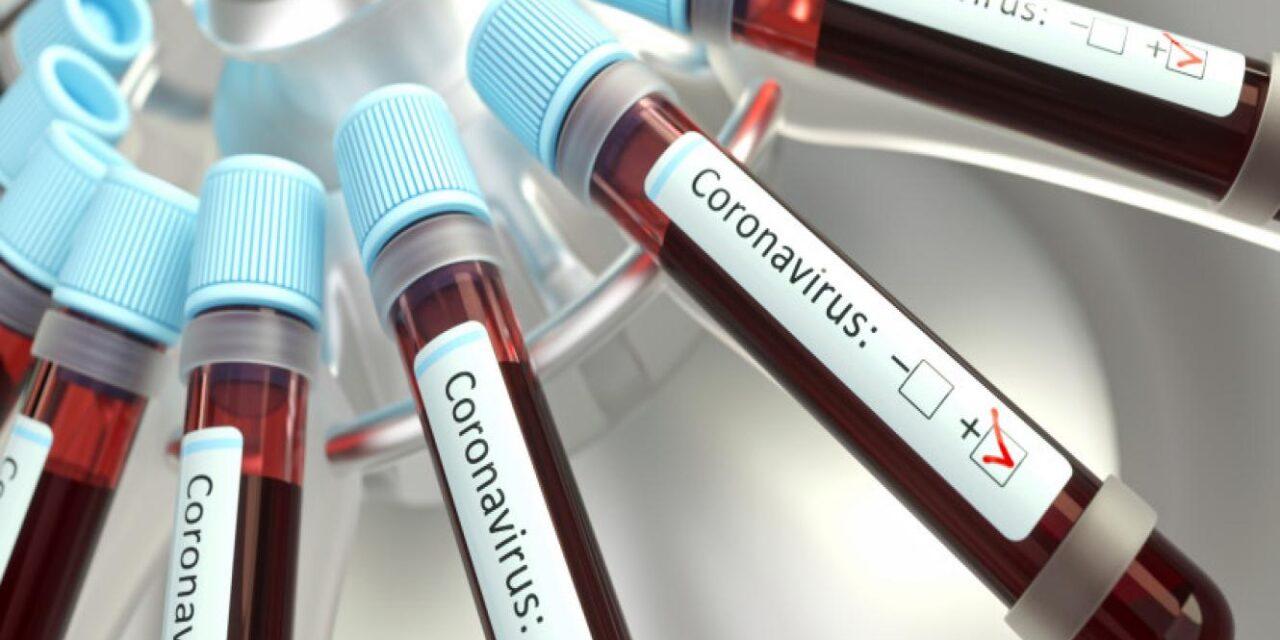 39 nuevos contagios en Santa Fe. En Cañada de Gómez 1 caso y otro en Carcarañá
